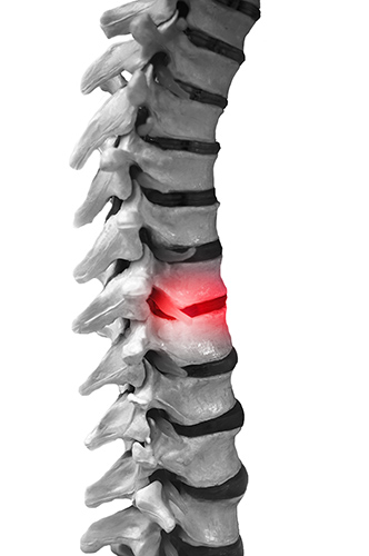 Active Rehab Return to a Structurally Optimal Position to Achieve Enhanced Wellness